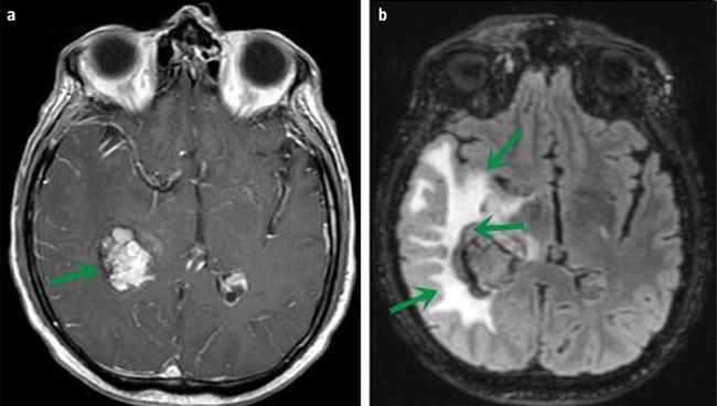 cáncer cerebral y disfunción eréctil