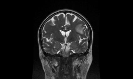 medicamentos utilizados para tratar el edema cerebral