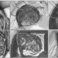 Enfermedad de moyamoya y dolor de cuello